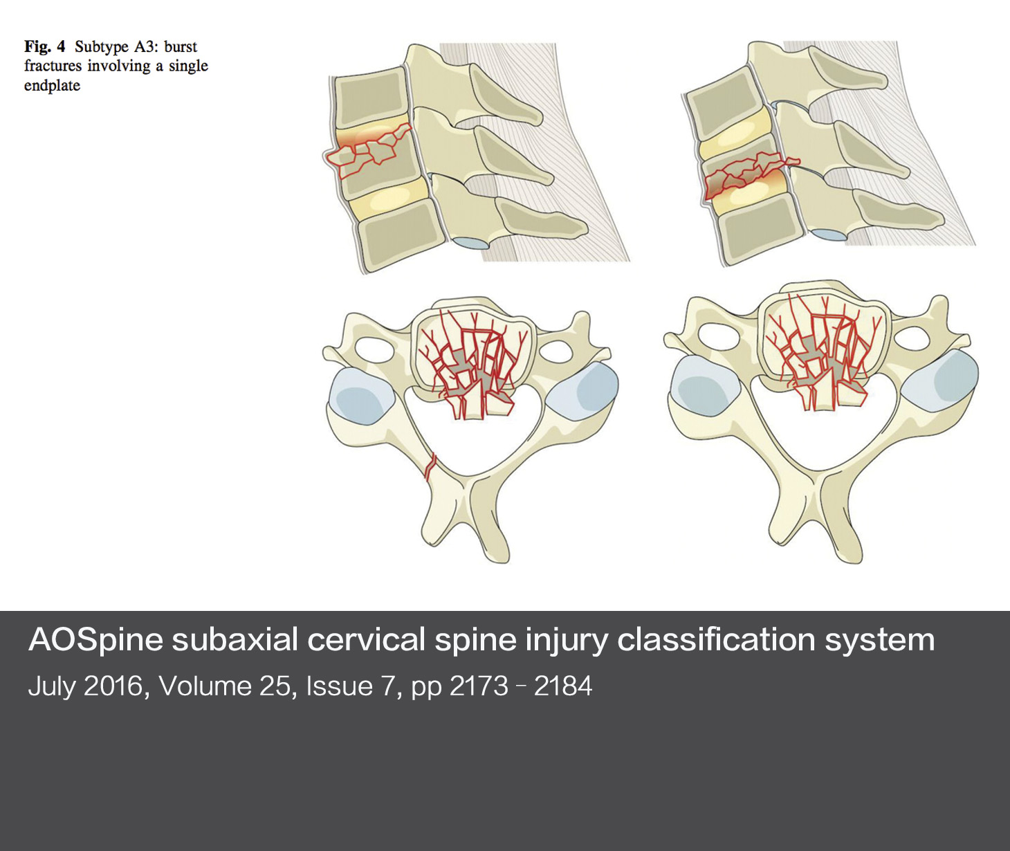 AOSpine subaxial cervical spine injury classification system
